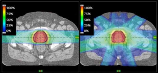 proton therapy for prostate cancer versus photon radiation