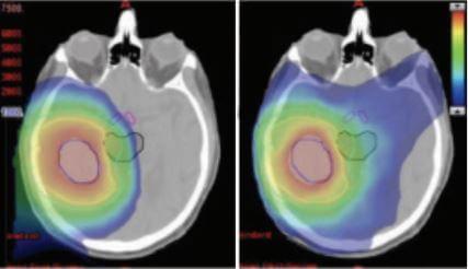 proton therapy for brain tumors versus photon radiation
