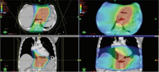 proton therapy for esophageal cancer versus photon radiation