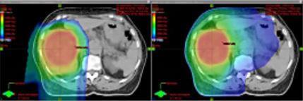 proton therapy for sarcomas versus photon radiation